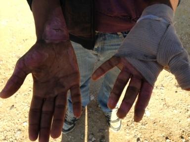 Maher displays his burnt hands. Photo EAPPI/D. Waring.