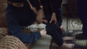 31.01.16 Hebron, Khaldon shows the metal supports that on his leg . EAPPI/F. Barreto